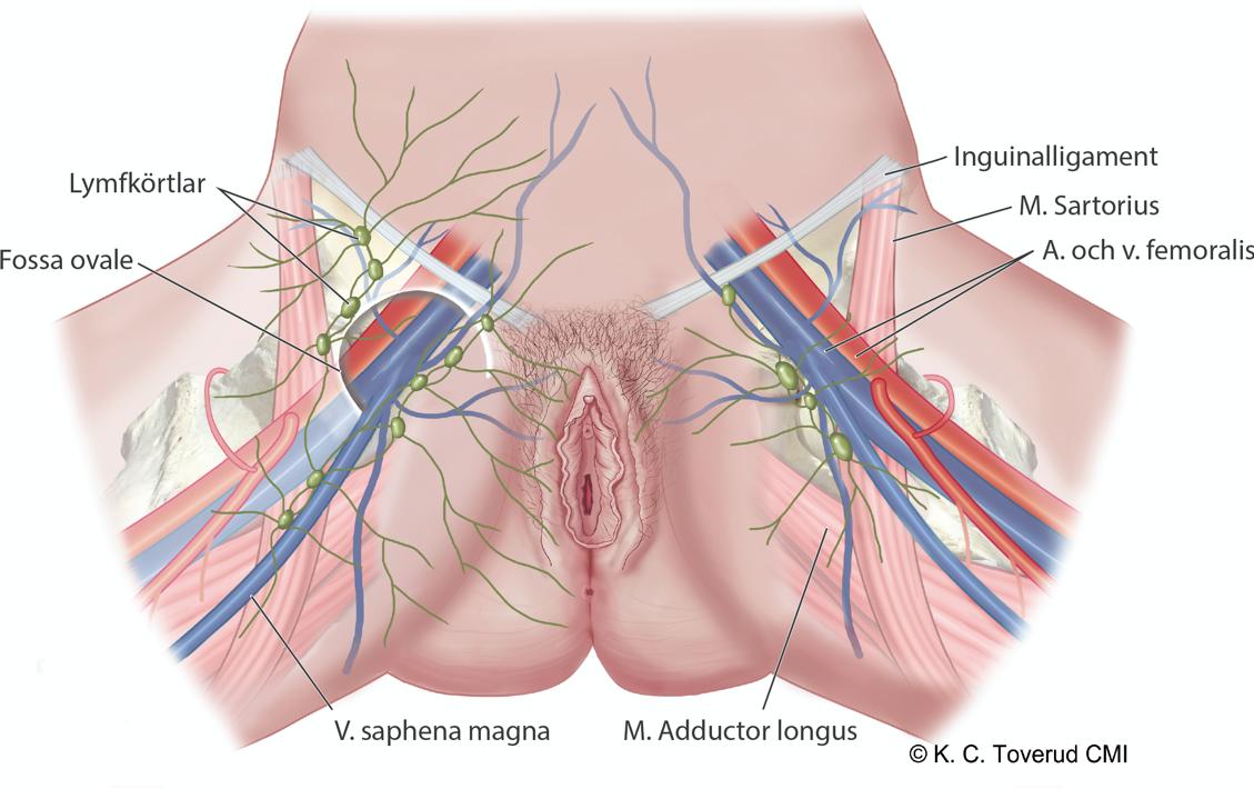 svullen lymfkörtel ljumsken orsak